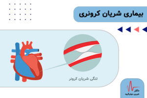 بیماری شریان کرونری